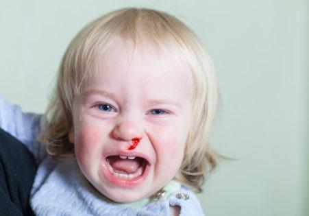 Førstehjelp ved neseblødning